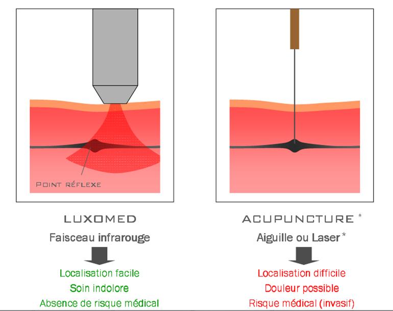 luxopuncture-versus-acupuncture