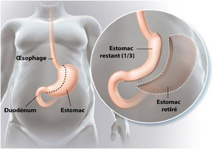 Sleeve gastrectomie ou la chirurgie bariatrique - Operation couper l estomac pour maigrir ...