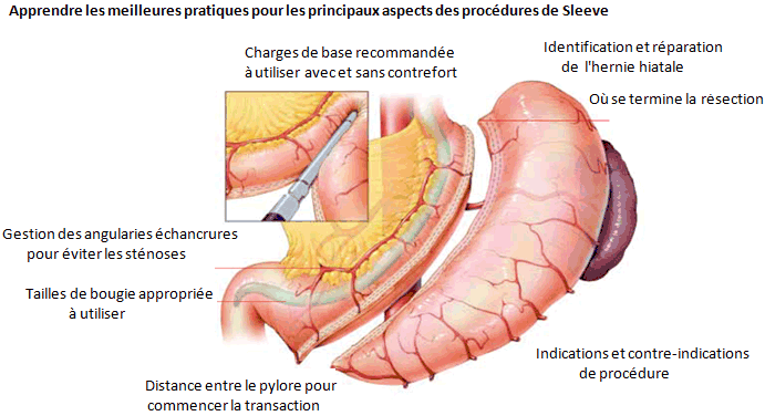 sleeve-gastrique - TesteurPilules.com