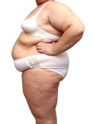 Femme obese graisse